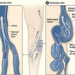Does Your Weight Cause Varicose Veins?