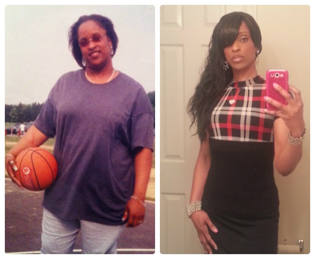 Member Spotlight-Weight Loss Surgery Before and After ...