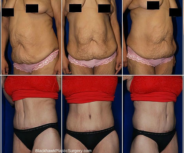 Tighten Skin After Extreme Weight Loss - compinter
