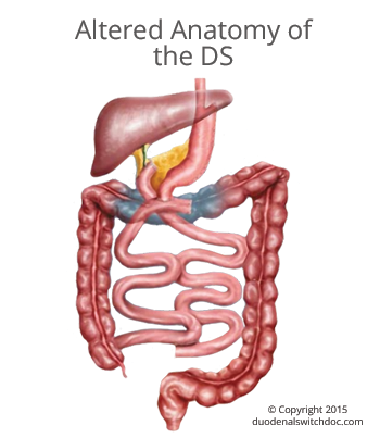 Anatomy And Physiology Of The Duodenal Switch Ds Obesityhelp