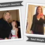 Before and After RNY with Maryann – 132 Pounds Lost!