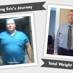 Before & After VSG with Eric's 187 Pound Weight Loss!