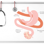 Horizons in Bariatric Surgery:  the SADI-S