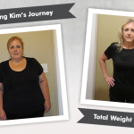 Before & After DS with Kim's 165 Pound Weight Loss!