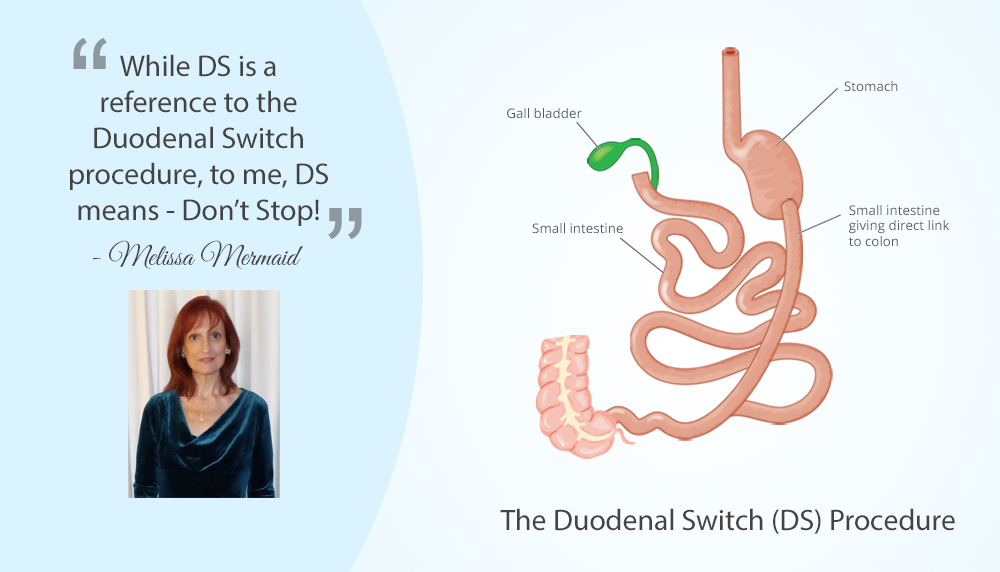 Living With the Duodenal Switch (DS) : ObesityHelp