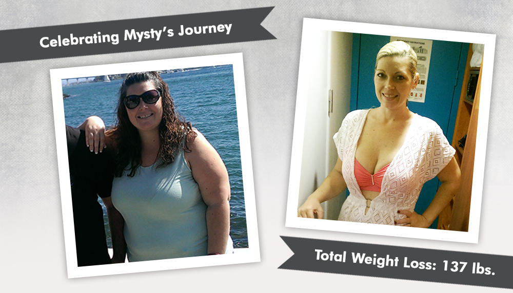 Before & After RNY Gastric Bypass with Mysty : ObesityHelp