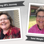 Before & After Revision from Lap-Band to Gastric Bypass with Jill