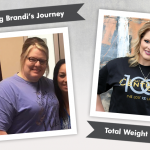 Before & After Vertical Sleeve Gastrectomy with Brandi