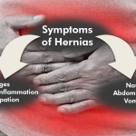 Hernias After WLS: Causes, Symptoms and Treatments