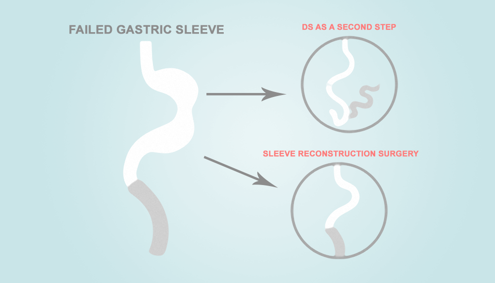 Differences Between a Sleeve Reconstruction and 2nd Step ...