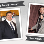Before & After VSG Gastric Sleeve with Dennis, losing 194 pounds!