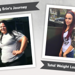 Before & After Gastric Sleeve with Erin!