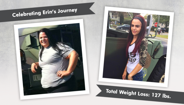 Before & After Gastric Sleeve with Erin Flannigan-Nieves