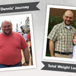 Before & After RNY with Dennis, losing 147 pounds!