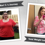 Before & After VSG with Kari C., losing 151 pounds!