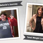 Before & After VSG with Melanie, losing 170 pounds!
