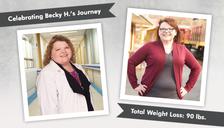 before after gastric sleeve with becky h