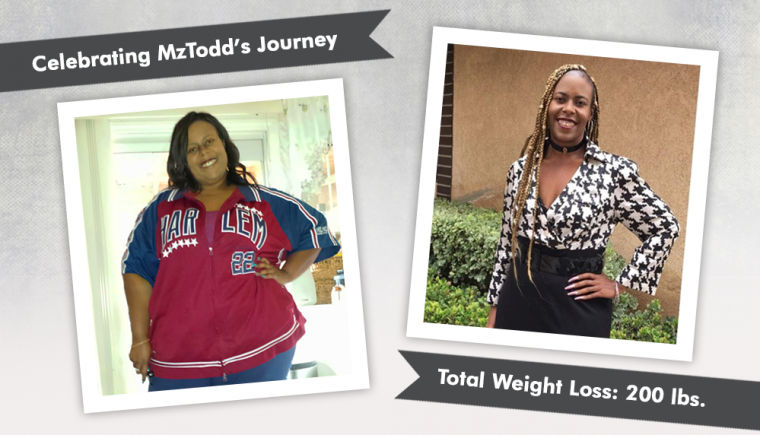 before after gastric sleeve with mztodd