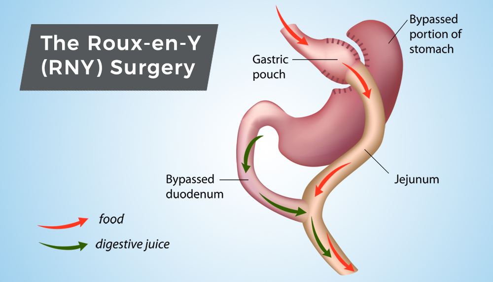 obesity and gastric bypass surgery essay