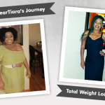 Before & After Gastric Bypass RNY with Deartiara, losing 110 lbs!