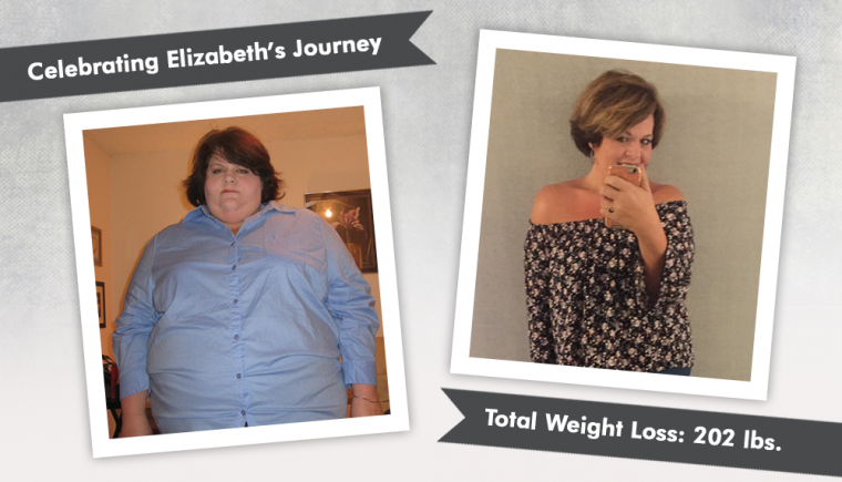 before after vsg with elizabeth losing 202 pounds