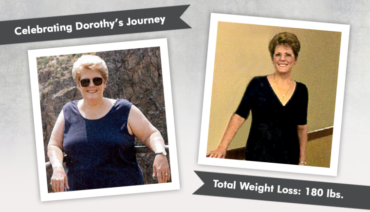 before after rny and plastic surgery with dorothy losing 180 lbs