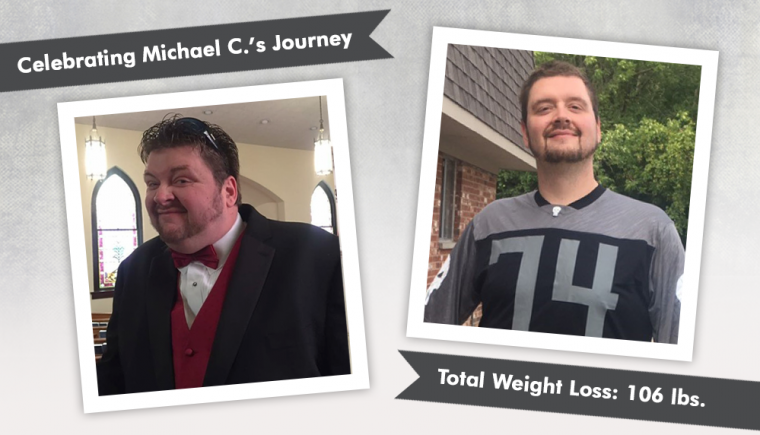 Before & After Gastric Sleeve With Michael C