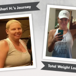 Before & After VSG with Shari H., losing 104 pounds!