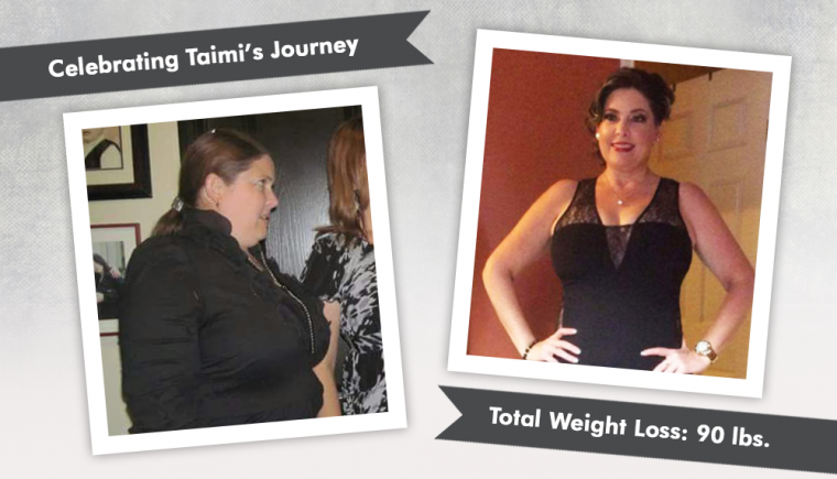 Before After VSG with Taimi losing 90 pounds