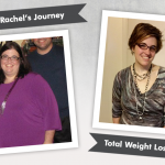 Before & After Duodenal Switch (DS) with Rachel, losing 180 pounds!