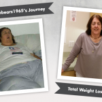 Before & After RNY with Karebearz1965, losing 211 pounds!