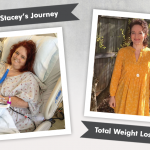Before & After RNY and Plastic Surgery with Stacey, losing 170 pounds!