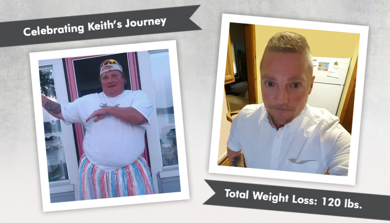 Before-After-VSG-Vertical-Sleeve-Gastrectomy-with-Keith-losing-120-pounds