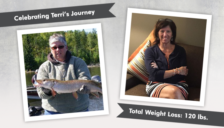 Before After VSG with Terri losing 120 pounds