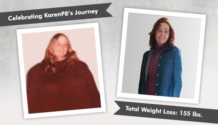 Before After RNY with KarenP8 losing 155 pounds 1