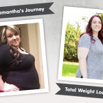 Before & After DS with Samantha, losing 207 pounds!