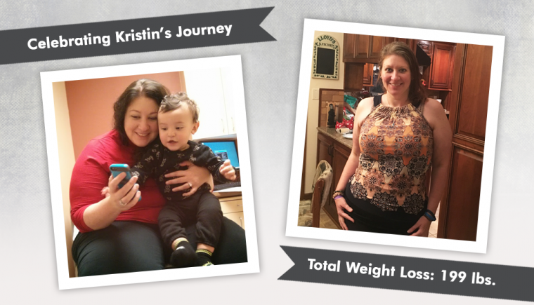 Before and After VSG with Kristin from Bariatric Mindset