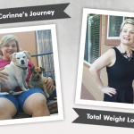 Before & After VSG with Corinne, losing 70 pounds & 50+ inches!