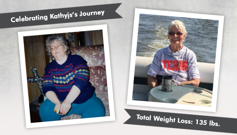 Before & After RNY with Kathyjs losing 135 pounds 5
