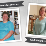 Before & After RNY with Nourish, losing 85lbs!