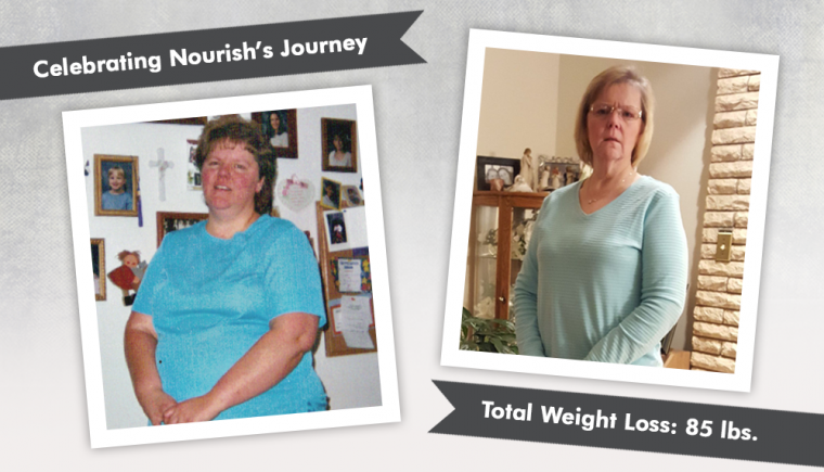 Before & After RNY with Nourish 3