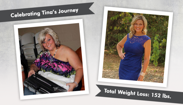 Before After VSG and Revision to Mini-Gastric Bypass with Tina