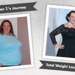 Before & After RNY with Jen T., losing 140 pounds!