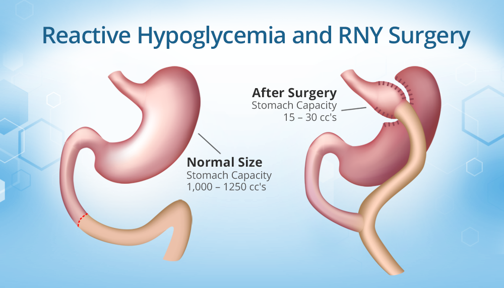 Reactive Hypoglycemia After RNY: Causes, Signs, and ...