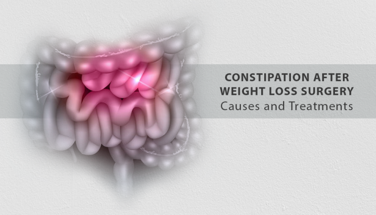 Constipation After Weight Loss Surgery